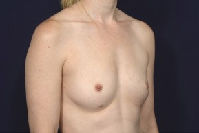 Before Photo - Breast Revision - Case #20840 - Breast Augmentation Revision - Oblique View