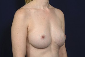 After Photo - Breast Revision - Case #20840 - Breast Augmentation Revision - Oblique View