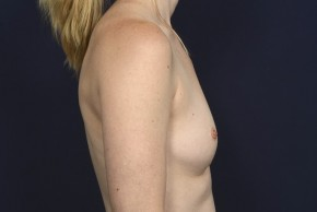 Before Photo - Breast Revision - Case #20840 - Breast Augmentation Revision - Lateral View