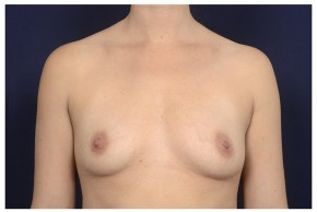 Before Photo - Breast Augmentation - Case #20844 - Frontal View