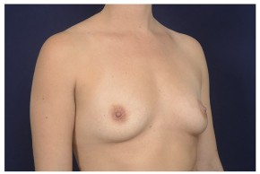 Before Photo - Breast Augmentation - Case #20844 - Oblique View