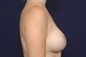After Photo - Breast Augmentation - Case #20844 - Lateral View