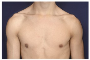 After Photo - Gynecomastia - Case #20845 - Frontal View