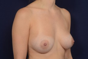 After Photo - Breast Augmentation - Case #20847 - Oblique View