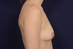 Before Photo - Breast Augmentation - Case #20847 - Lateral View