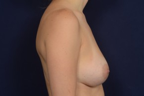 After Photo - Breast Augmentation - Case #20847 - Lateral View