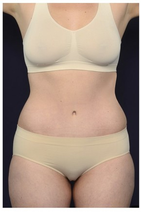 After Photo - Tummy Tuck - Case #20848 - Abdominoplasty - Frontal View