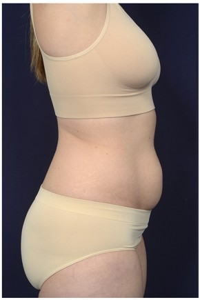 Before Photo - Tummy Tuck - Case #20848 - Abdominoplasty - Lateral View