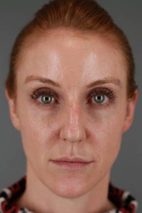 Before Photo - Nose Surgery - Case #20849 - Rhinoplasty - Frontal View