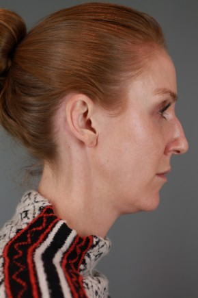 Before Photo - Nose Surgery - Case #20849 - Rhinoplasty - Lateral View