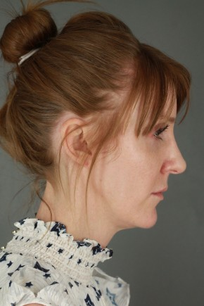 After Photo - Nose Surgery - Case #20849 - Rhinoplasty - Lateral View