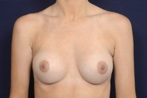 After Photo - Breast Augmentation - Case #20851 - Frontal View