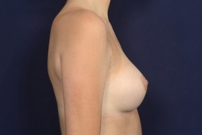 After Photo - Breast Augmentation - Case #20851 - Lateral View