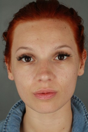 Before Photo - Nose Surgery - Case #20852 - Rhinoplasty - Frontal View