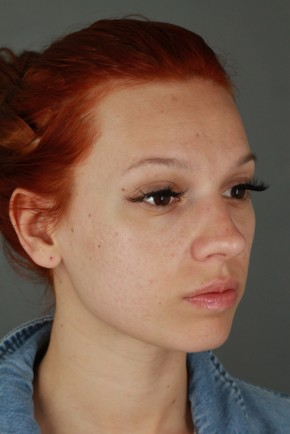 Before Photo - Nose Surgery - Case #20852 - Rhinoplasty - Oblique View