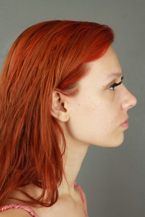 After Photo - Nose Surgery - Case #20852 - Rhinoplasty - Lateral View