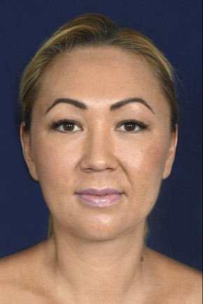 After Photo - Neck Lift - Case #20854 - Lower Facial Rejuvenation - Frontal View
