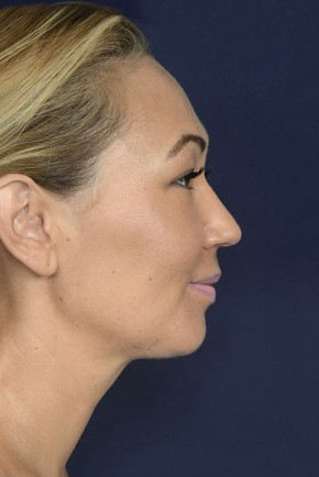 After Photo - Neck Lift - Case #20854 - Lower Facial Rejuvenation - Lateral View