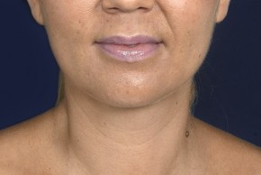 After Photo - Neck Lift - Case #20855 - Lower Facial Rejuvenation  - Frontal View