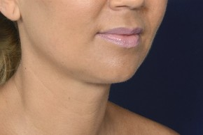 After Photo - Neck Lift - Case #20855 - Lower Facial Rejuvenation  - Oblique View