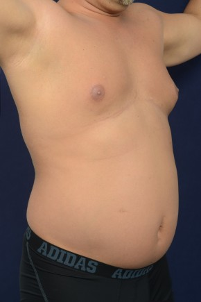Before Photo - Liposuction - Case #20856 - Trunk Liposuction - Oblique View