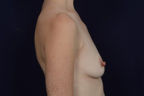 Before Photo - Breast Augmentation - Case #20858 - Lateral View