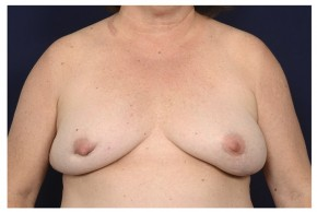 Before Photo - Breast Revision - Case #20860 - Breast Augmentation Revision - Frontal View
