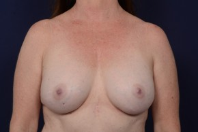 After Photo - Breast Augmentation - Case #20862 - Frontal View