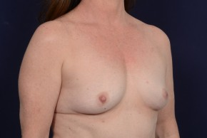 Before Photo - Breast Augmentation - Case #20862 - Oblique View