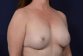 After Photo - Breast Augmentation - Case #20862 - Oblique View