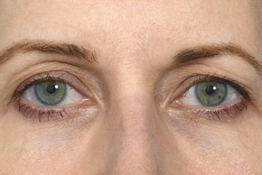 Before Photo - Fat Transfer - Case #20863 - Eye Area Rejuvenation - Frontal View