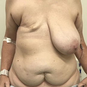 Before Photo - Breast Reconstruction - Case #20869 - DIEP Flap Breast Reconstrution - Frontal View