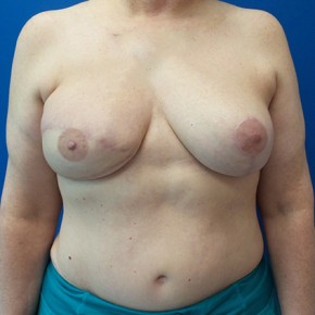 After Photo - Breast Reconstruction - Case #20869 - DIEP Flap Breast Reconstrution - Frontal View