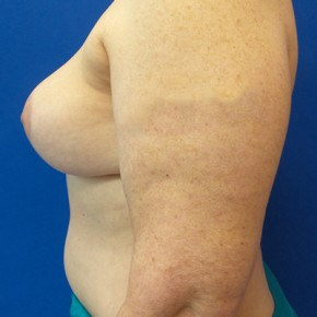 After Photo - Breast Reconstruction - Case #20869 - DIEP Flap Breast Reconstrution - Lateral View