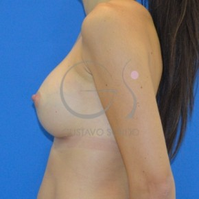 After Photo - Breast Augmentation - Case #20879 - Anatomical breast augmentation - Lateral View
