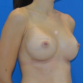 After Photo - Breast Augmentation - Case #20879 - Anatomical breast augmentation - Oblique View