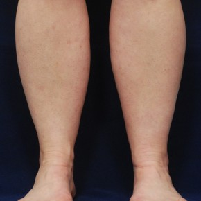 Before Photo - Liposuction - Case #21063 - Lower Leg Liposuction - Frontal View