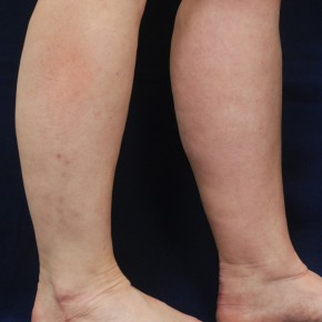 Before Photo - Liposuction - Case #21063 - Lower Leg Liposuction - Lateral View