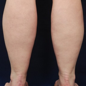 Before Photo - Liposuction - Case #21063 - Lower Leg Liposuction - Posterior View