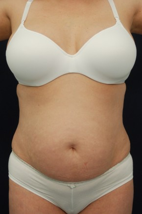 Before Photo - Tummy Tuck - Case #21065 - Abdominoplasty - Frontal View