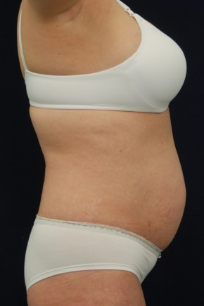 Before Photo - Tummy Tuck - Case #21065 - Abdominoplasty - Lateral View