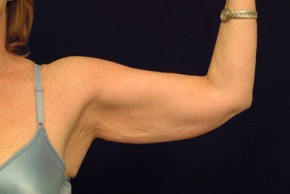 Before Photo - Upper Arm Lift - Case #21066 - Brachioplasty - Frontal View