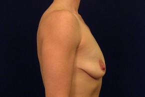 Before Photo - Breast Lift - Case #21068 - Augmentation Mastopexy - Lateral View