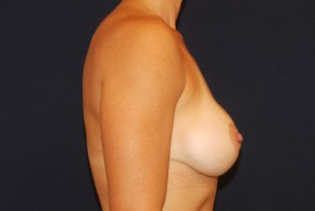 After Photo - Breast Lift - Case #21068 - Augmentation Mastopexy - Lateral View
