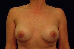 After Photo - Breast Augmentation - Case #21070 - Frontal View