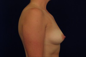 Before Photo - Breast Augmentation - Case #21070 - Lateral View