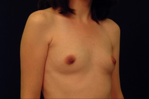Before Photo - Breast Augmentation - Case #21071 - Oblique View