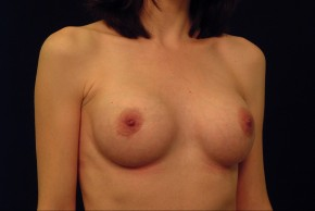 After Photo - Breast Augmentation - Case #21071 - Oblique View
