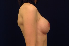 After Photo - Breast Augmentation - Case #21071 - Lateral View
