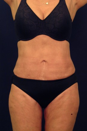 After Photo - Liposuction - Case #21072 - Frontal View